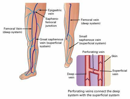 leg anatomy Venous Insufficiency