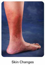 skin changes Venous Insufficiency