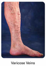 varicose veins1 Venous Insufficiency