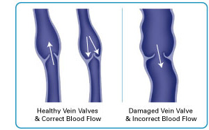 Varicose vein treatment gainesville fl